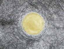 Zeichnungen – 3 Umkreisungen (2012)